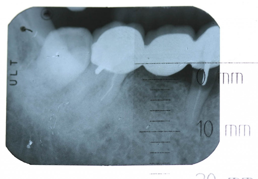 Implant-1-001