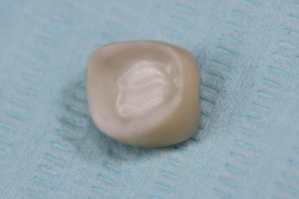 Implant-1-012