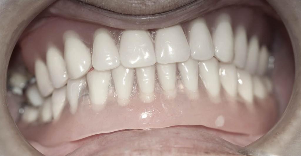 Implant-2-017