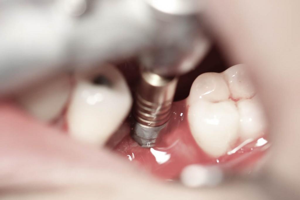 Implant-3-008