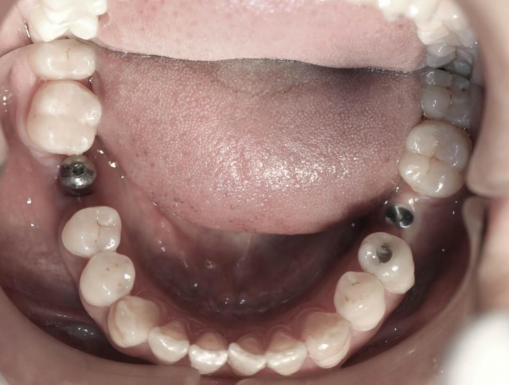 Implant-3-010
