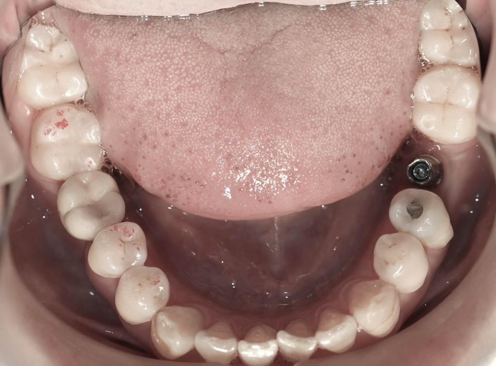 Implant-3-011