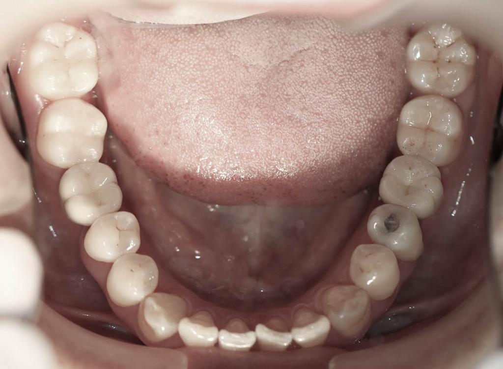 Implant-3-012