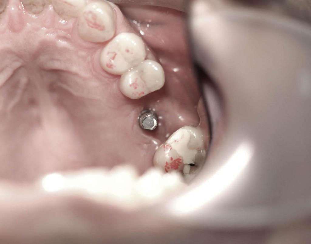 Implant-4-016