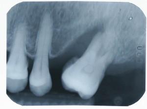 Implant-5-005