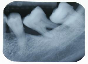 Implant-5-006