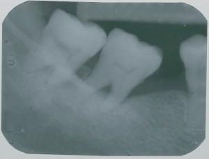 Implant-5-007