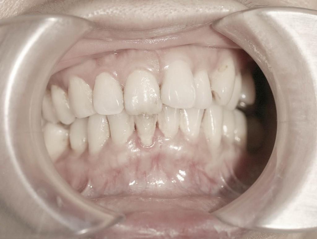 Implant-6-001