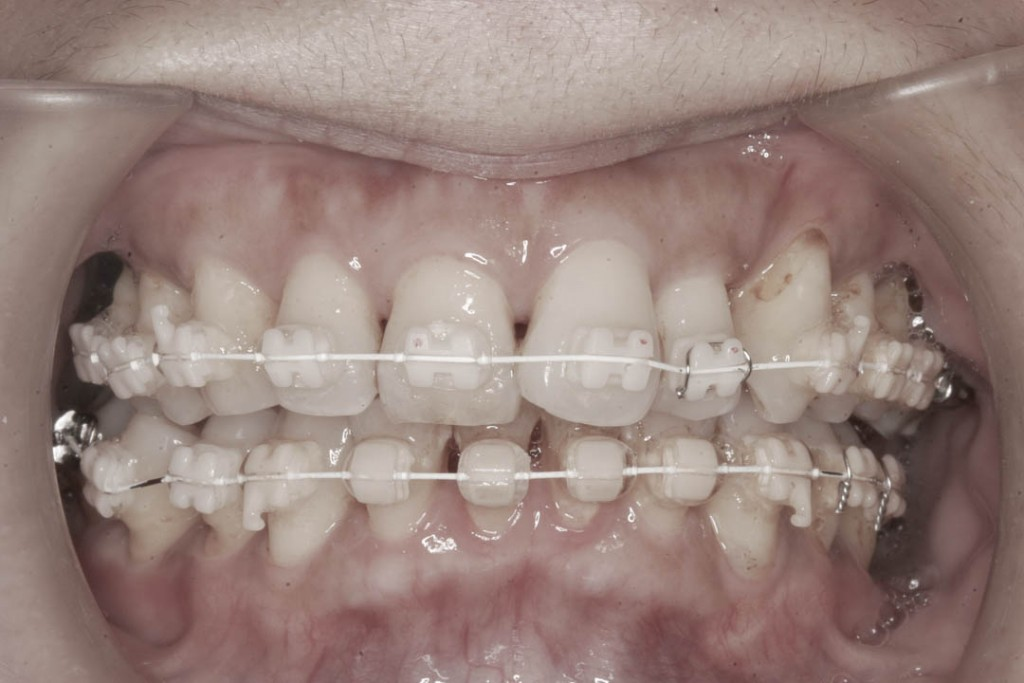 Implant-6-004