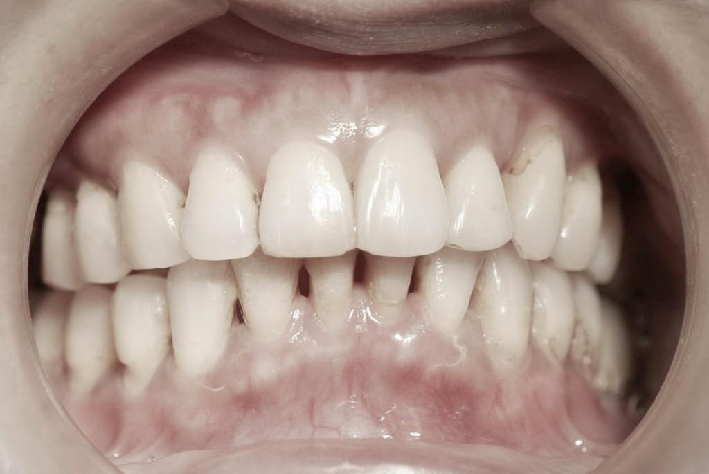 Implant-6-005