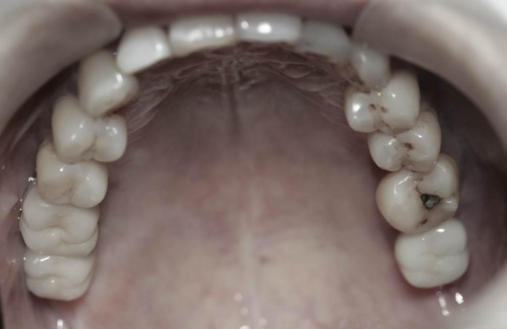 Implant-6-029