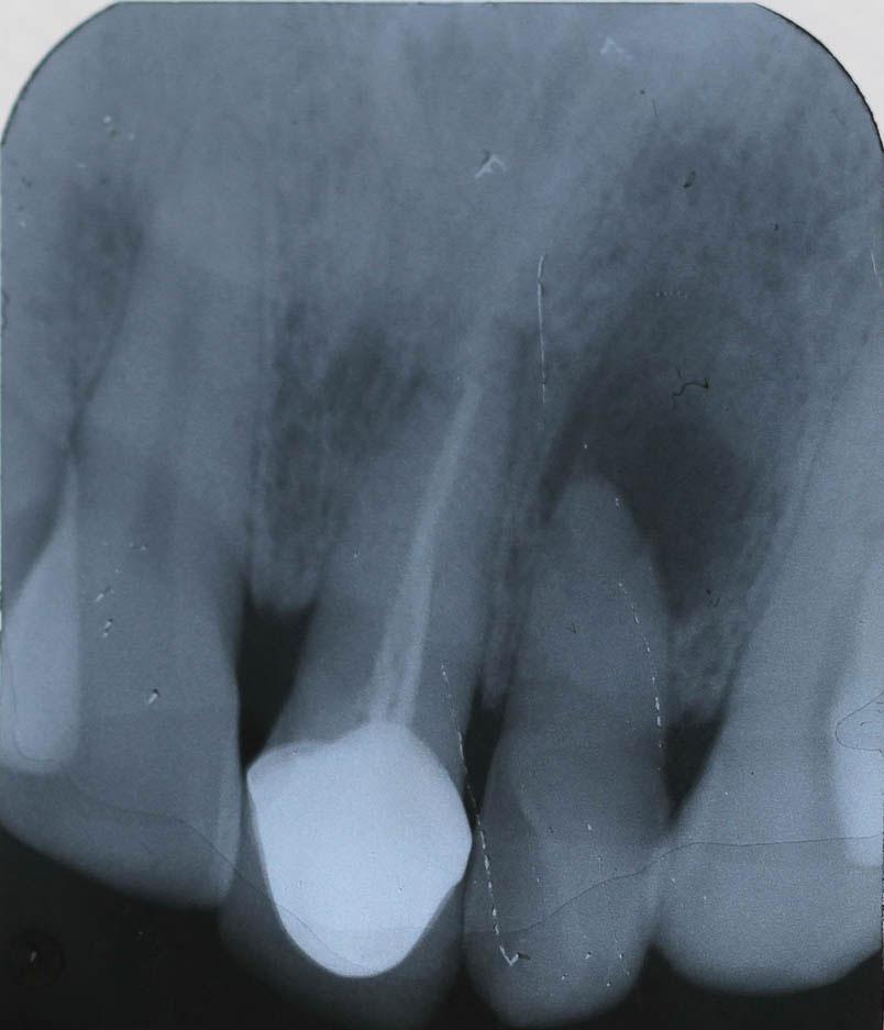 Implant-7-002