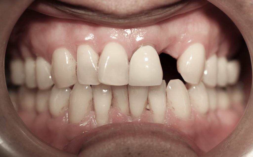 Implant-7-003