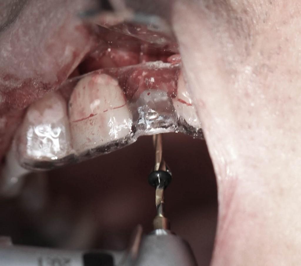 Implant-7-006