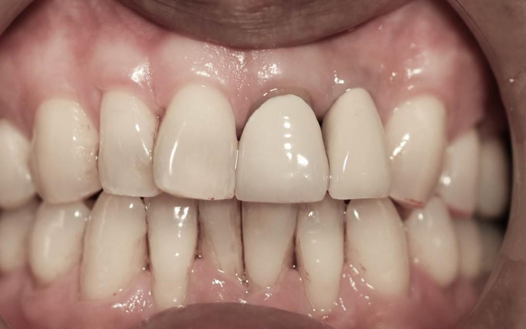 Implant-7-014